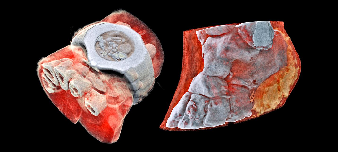 Первый трехмерный цветной рентген выглядит великолепно