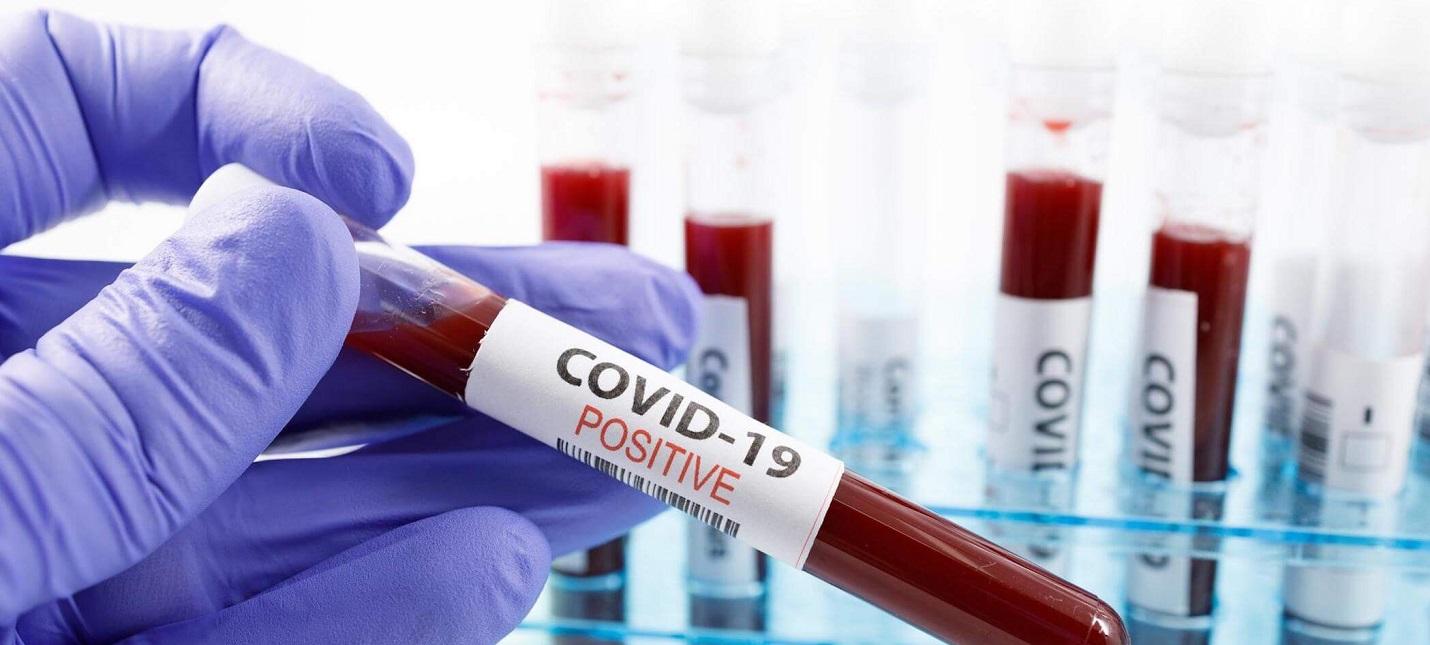 Антитела к коронавирусу COVID-19 остаются активными около четырех месяцев