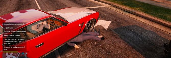 Мод GTA 5 добавляет сердечные приступы, повреждение нервов и другой урон
