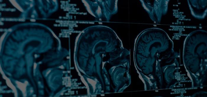 Первая пересадка человеческой головы будет неудачной. Вот почему