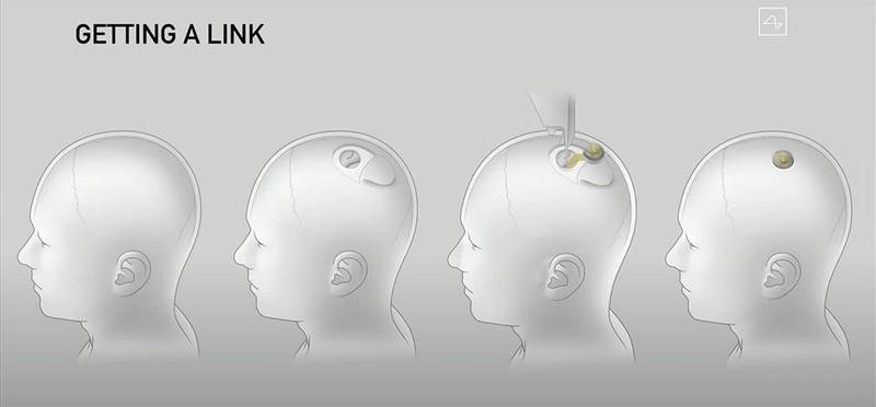 Илон Маск представил робота для имплантации нейроинтерфейса в мозг, а также показал свинью-киборга